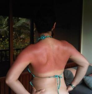 bad sunburn